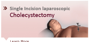 Single Incision Laparoscopic Cholecystectomy